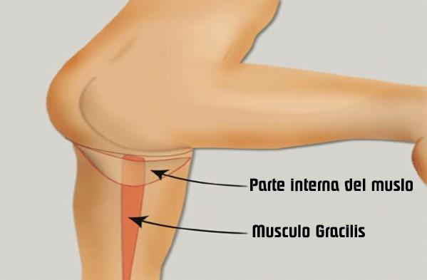 3 opciones de tratamiento para Gracilis 3 opciones de tratamiento para el dolor gracilis 3 opciones de tratamiento para el Dolor Gracilis Screenshot 22 15