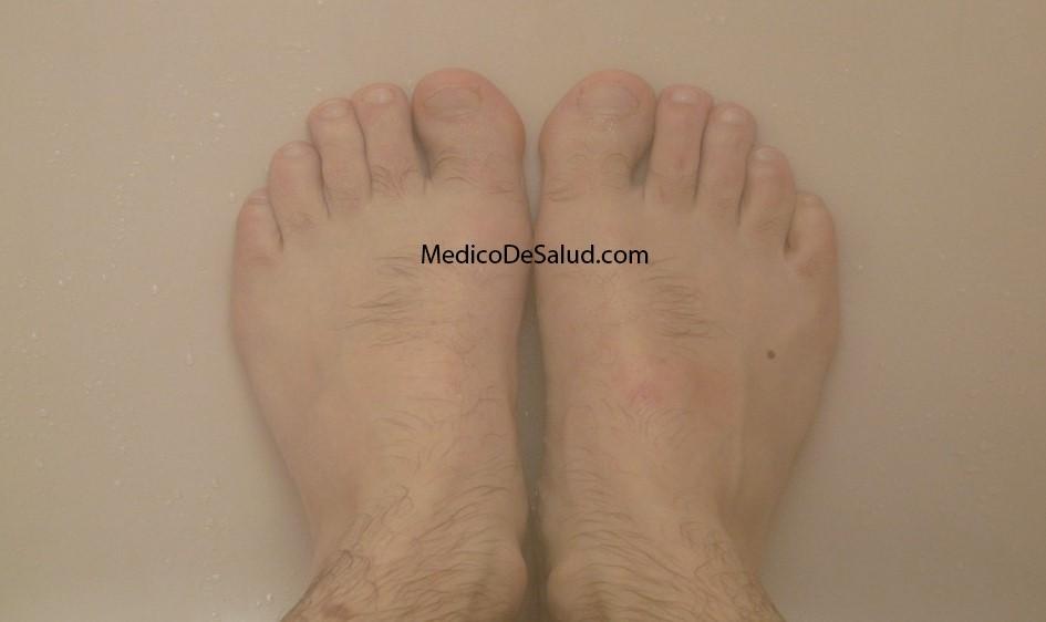 Usos para vinagre en los dedos del pie ¿el vinagre blanco es bueno para la salud? ¿El vinagre blanco es bueno para la salud? Screenshot 50