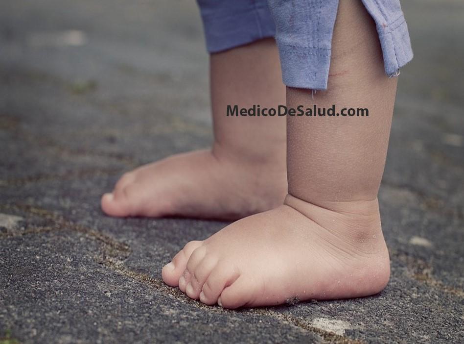 tobillos hinchados y picazón en la piel
