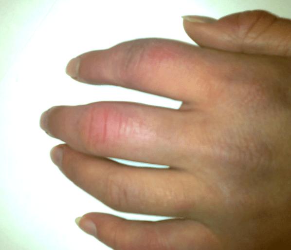 Dedos de las manos hinchadas, causas y qué hacer