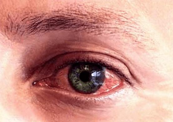Ojo izquierdo Rojo