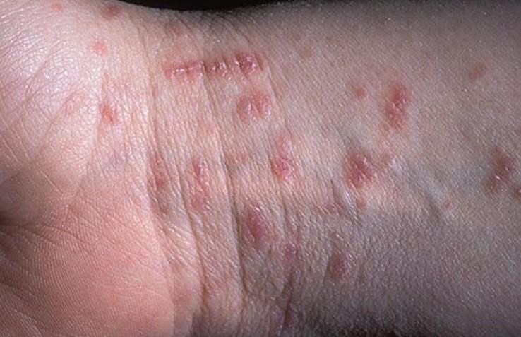 ¿Cuales son los Síntomas de la Sarna? sarna que es que es sarna? causas síntomas diagnostico tratamiento causas sarna síntomas sarna diagnostico sarna Sarna: Que es? Causas, Síntomas, Diagnostico y Tratamiento Cuales son los S  ntomas de la Sarna