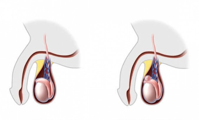 Espermatocele: Causas, Síntomas, Diagnostico y Tratamiento