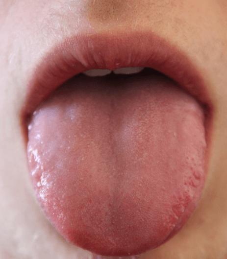 Hormigueo en la Lengua