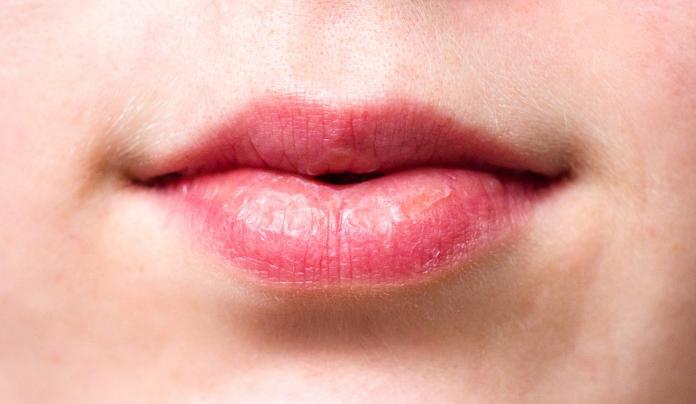 Hormigueo en los labios