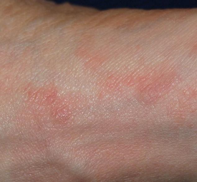 Sarna: Que es? Causas, Síntomas, Diagnostico y Tratamiento