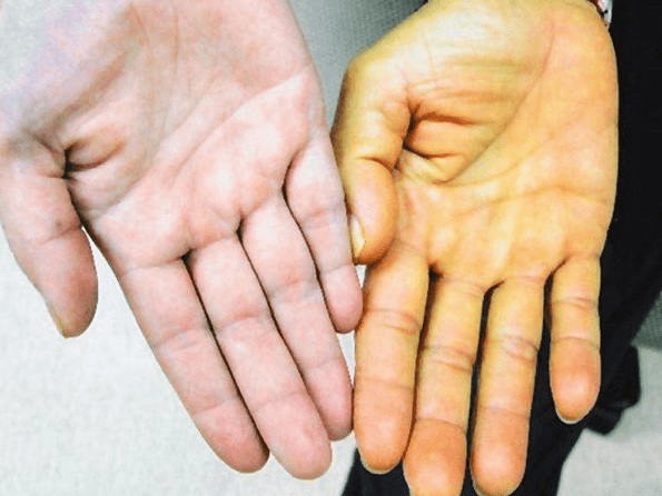 Palmas de las manos amarillas - causa y eliminación